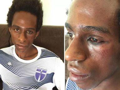 Ator é vítima de ataque racista
