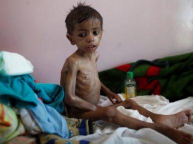 Organizações humanitárias: 'EUA é cúmplice de massacre no Iêmen'