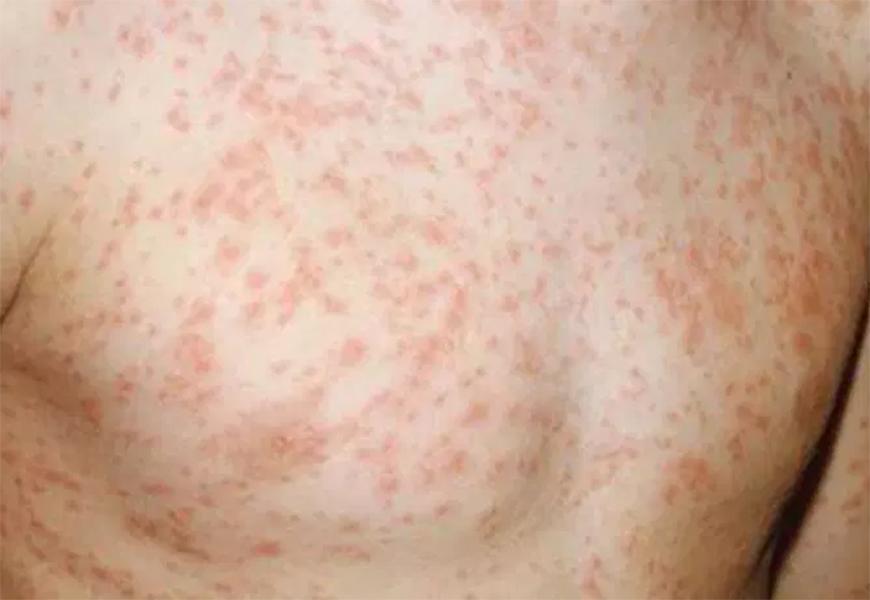 Resultado de imagem para sarampo