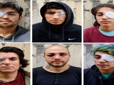26 chilenos foram cegos por tiros de balas de borracha da polícia