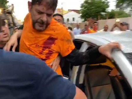 Senador Cid Gomes é baleado no Ceará