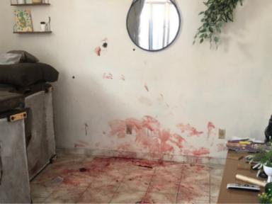 """Mortos no Jacarezinho tinham """"faces dilaceradas e braços quebrados"""", apontam laudos"""